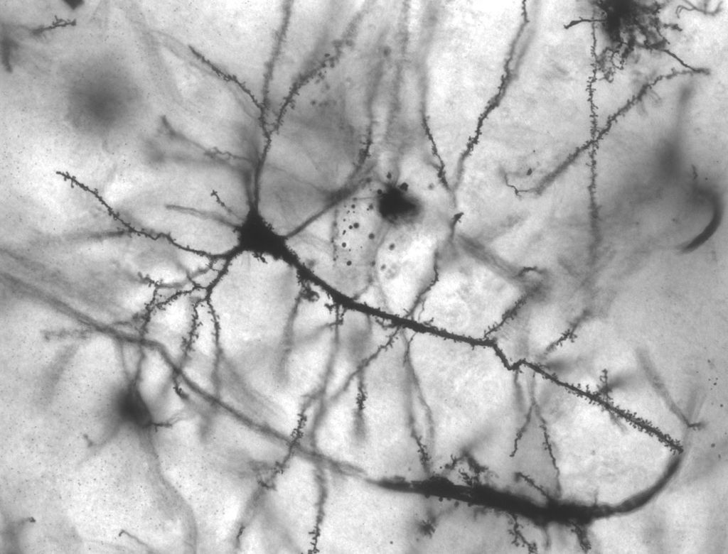 Golgi stained pyramidal neuron in the hippocampus of an epileptic patient. 40 times magnification. By Methoxy Roxy.