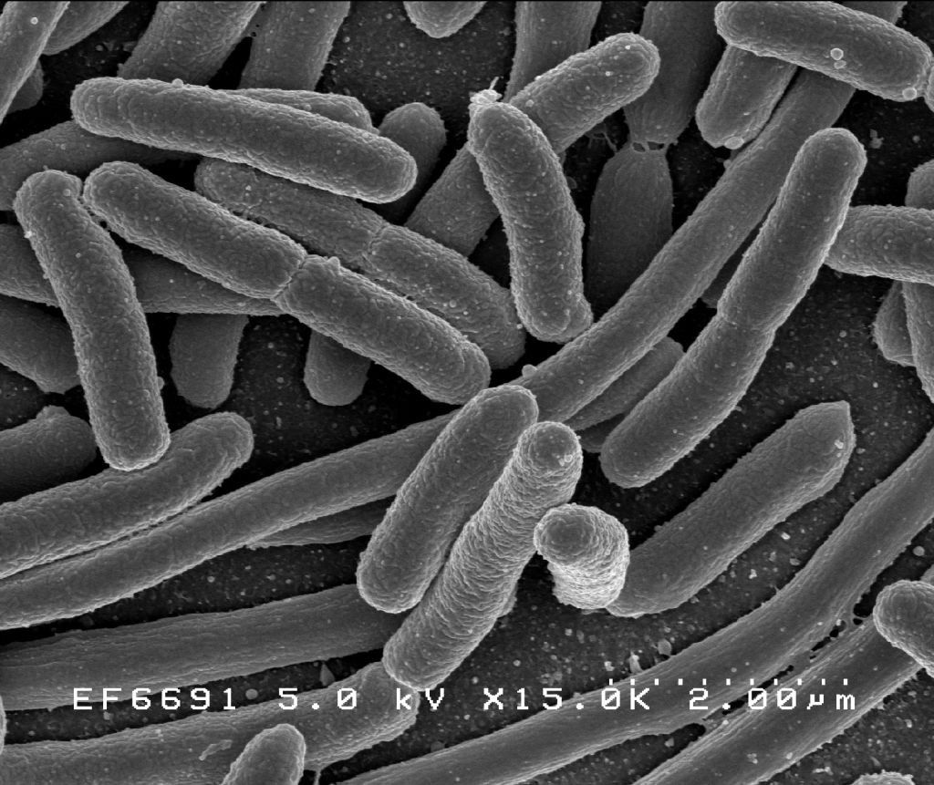 Escherichia coli: Scanning electron micrograph of Escherichia coli, grown in culture and adhered to a cover slip. Credit: Rocky Mountain Laboratories, NIAID, NIH